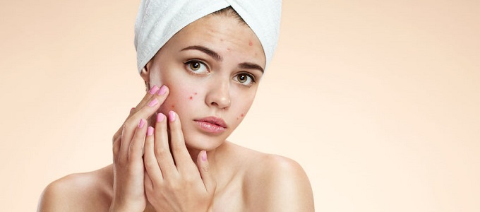 Acne Treatments, Facials at Beach Hair & Beauty Salon, Hove, Brighton, East Sussex